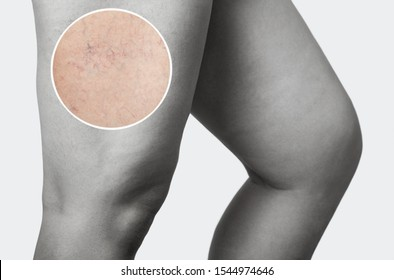 The dilation of small blood vessels of the skin on the leg. Medical inspection and treatment of Telangiectasia, cosmetology