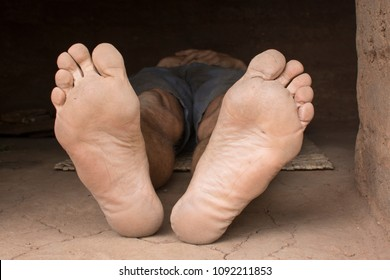 Dirty barefoot soles of poor man lying on mat on dirty floor of hut