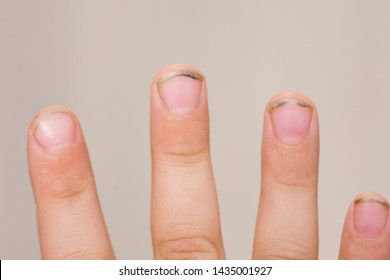 https://image.shutterstock.com/image-photo/dirty-long-nails-have-germs-260nw-1435001927.jpg