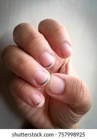 Dirty Fingernails Images, Stock Photos & Vectors | Shutterstock