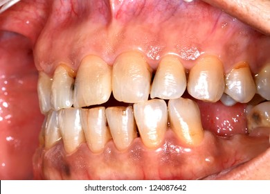 Discolored teeth result of smoking