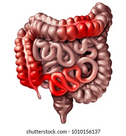 Crohn�s disease or crohn illness medical concept as human intestines with inflammation symptoms causing obstruction as a 3D illustration.