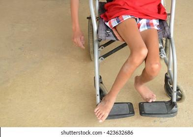 Disease impaired leg