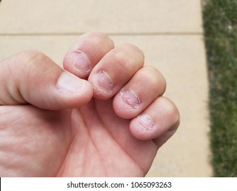 disgusting bitten fingernails and sidewalk
