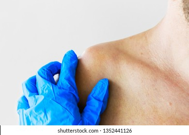 Dislocation or fracture of the clavicle and acromial process with displacement. The doctor examines the patient with a dislocation and fracture of the clavicle and acromial process, close-up