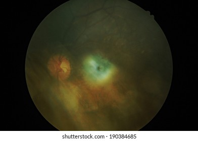 Disorders of sclera  Retinal picture ,Medical photo tractional (eye screen) retinal  detachment of diabetes