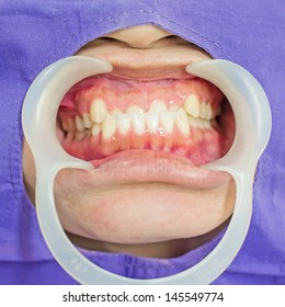 Disorders of the teeth, upper teeth behind lower teeth