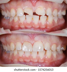 distema closure with direct composite filling