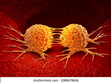 Dividing cancer cell metastasis division as a disease anatomy concept as a growing malignant tumor on an organ inside the human body as a 3D illustration.