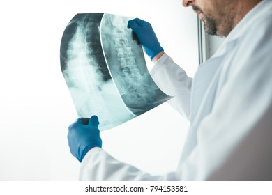 Doctor analyzing x-ray of the patient's spine in a medical clinic. Healthcare professional examining imaging test for abnormalities in human backbone.