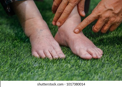 Doctor assessing a elderly swollen foot in physical therapy room