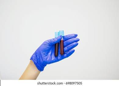 Doctor in blue gloves keep in hands test tube with a blood and plasma. Syringe with platelet rich plasma. Beauty injection