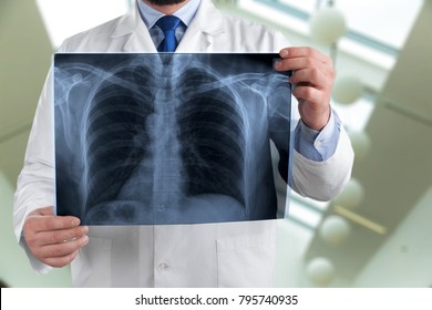 A doctor checking chest x-ray