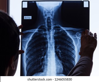 Doctor checking on chest X-ray. Man holding radiography looking at it. Spinal column exam, anatomy, science, profession, work, patient accident concepts. Language translation: right