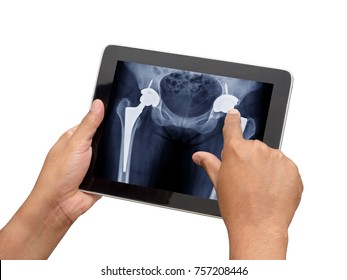 Doctor checking x ray of patient who have both side total hip replacement in tablet by use hospital application.