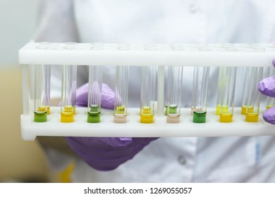 The doctor conducts a study of urine and blood for doping and various biochemical substances