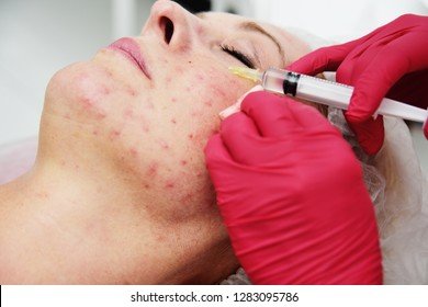 doctor cosmetologist dermatologist conducts a session of mesotherapy for an elderly woman. Facial rejuvenation, injection of youth.