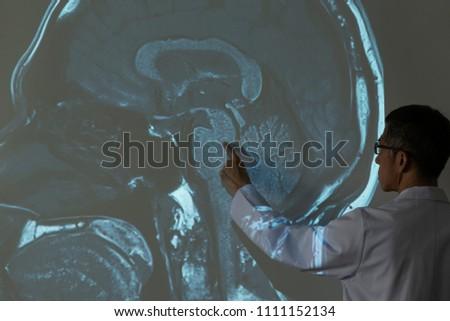 Doctor Demonstrating Mri Human Brain Anatomy Stock Photo Edit Now