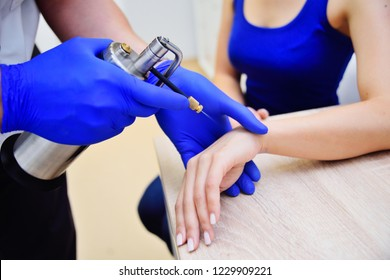 the doctor the dermatologist doing the procedure - cryotherapy - cold treatment is a special apparatus with cryodestruction