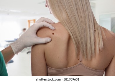Doctor dermatologist examines birthmark of patient close up isolated on white background. Checking benign moles. Laser Skin tags removal