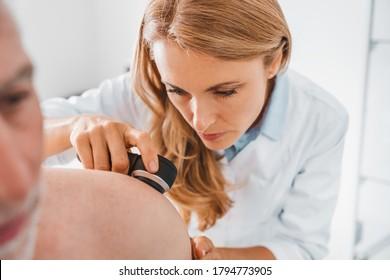 Doctor dermatologist examines skin of patient. Dermatoscopy, prevention of melanoma, skin cancer.