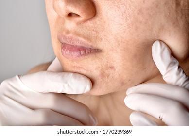Ärztin oder Dermatologe prüfen das Gesicht des Patienten. Hautprobleme und Akne-Narben, Gesichtspflege Akne, Gesundheits- und Schönheitskonzept.