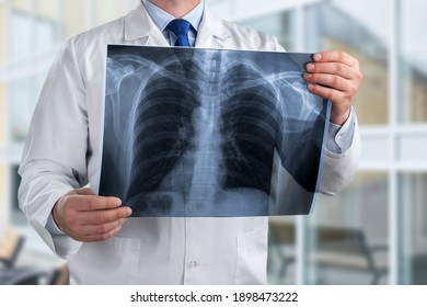Doctor diagnosing patient's health on asthma, lung disease, COVID-19 or bone cancer illness with radiological chest x-ray film for medical healthcare hospital service