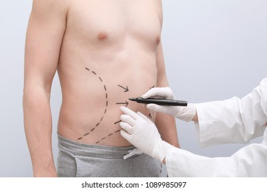 Doctor drawing lines on man's stomach with marker against light background
