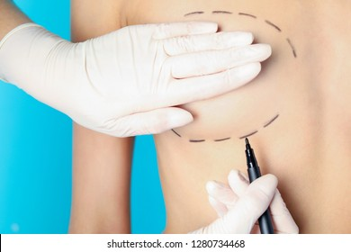 Doctor drawing marks on patient's breast for cosmetic surgery operation against color background, closeup