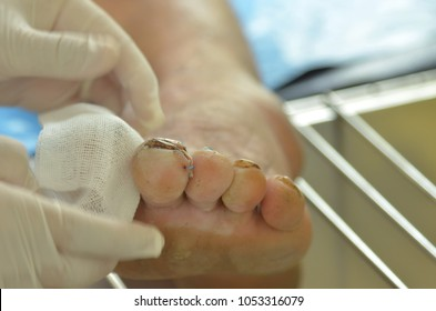 Doctor was dressing foot nail had stitches.