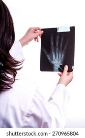 Doctor examine X ray of Hand. Hand holding the xray picture, while the Doctor are looking for Fracture on the patients picture