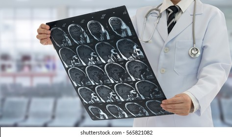 Doctor examines film x-ray brain by ct scan mri of the patient.