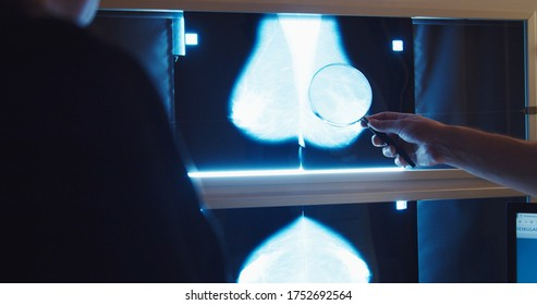 Doctor examines mammogram snapshot of breast of female patient on the monitors with magnifying glass . Breast cancer prevention.