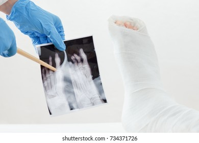 Doctor examines x-ray image, broken leg of the patient in plaster lying on the couch, on white background
