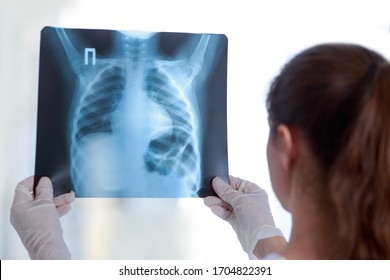 Doctor examines an X-ray of a lung