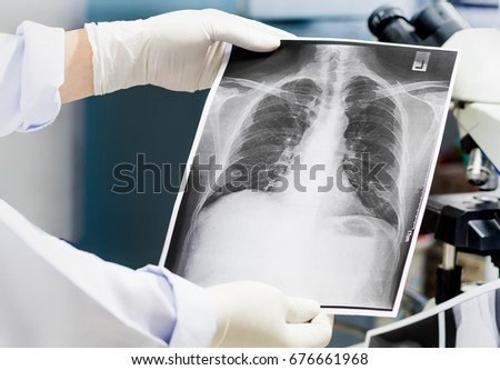Doctor Examining Lung Radiography Doctor Looking Stock Photo Edit