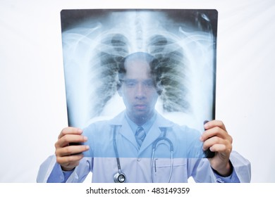 Doctor examining lungs x-ray in his hands