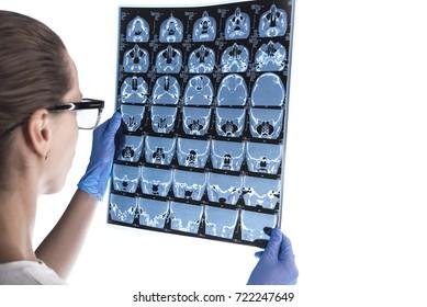 doctor examining an roentgen of a patient's brain