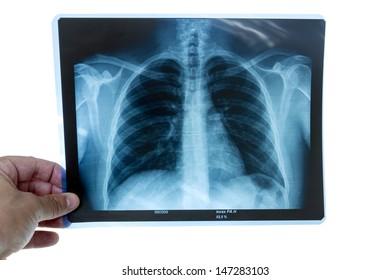 Doctor examining a torax radiography