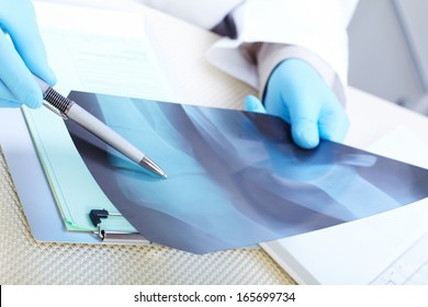 Doctor examining an x-ray. Medicine and health-care