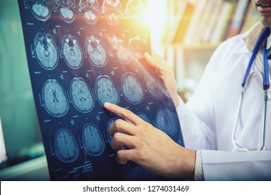 doctor give advice to patient about MRI (Xray) brain Scans