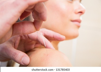 Doctor hands acupuncture needle pricking on woman patient closeup