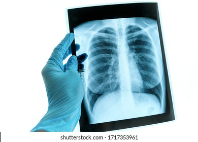 Doctor hands holding patient chest x-ray film before treatment.Covid-19 scan body xray test detection for covid virus epidemic spread concept.