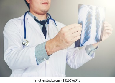 Doctor holding and checking chest x-ray film or roentgen image in ward hospital