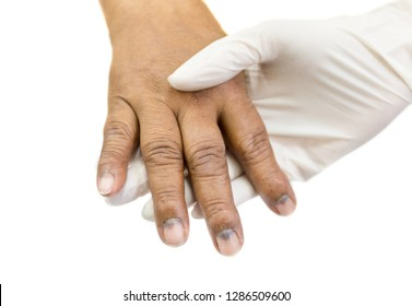 doctor holding hand of cancer patient, hand and skin of cancer patient, chemotherapy side effects, cancer treatment process