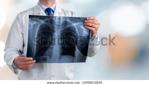 Doctor holding radiography x ray photo on hospital background