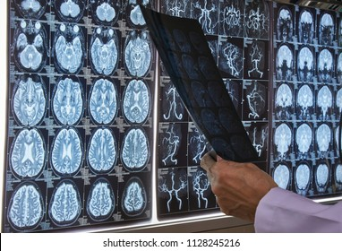 Doctor holding and reading a brain MRI film in medical office