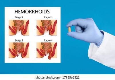 External Hemorrhoid Images Stock Photos Vectors Shutterstock