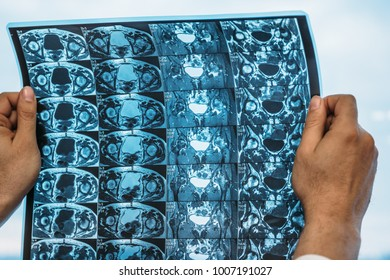 Doctor holds MRI scan or X-Ray film of heap joint in his hands