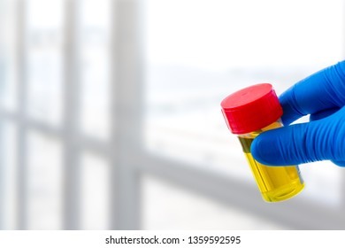 Doctor holds urine sample for test and analysis conceptual image on white background